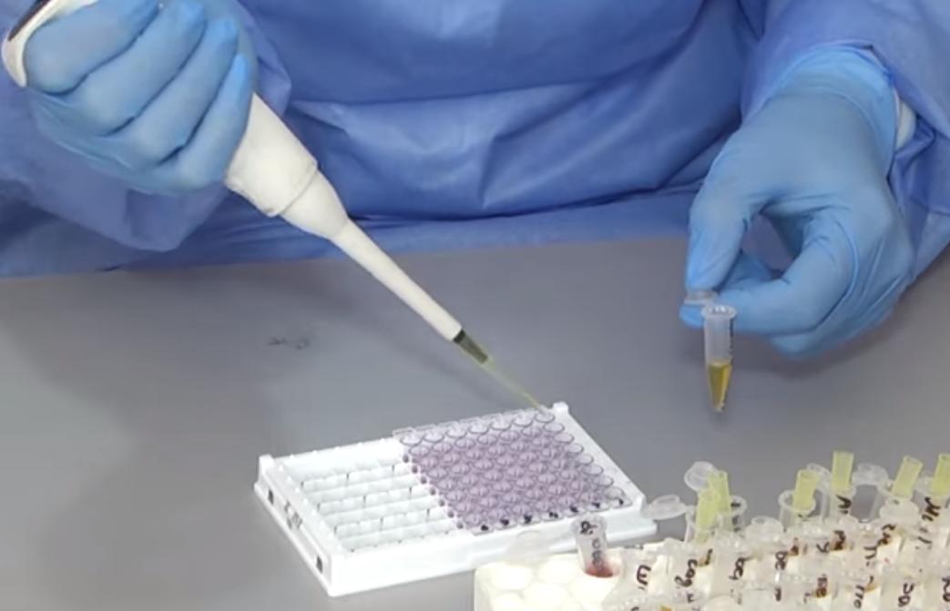 Каждый пятый, сдавший ИФА-тест в Черновцах, имеет антитела к коронавирус...