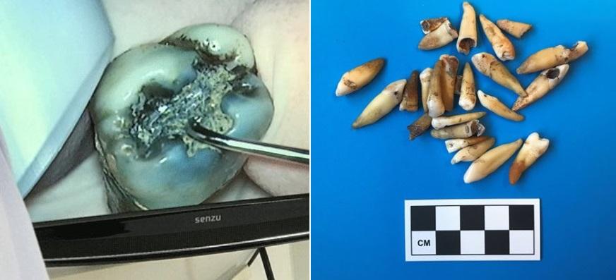 На месте строительства австралийского метро нашли 1000 человеческих зубо...