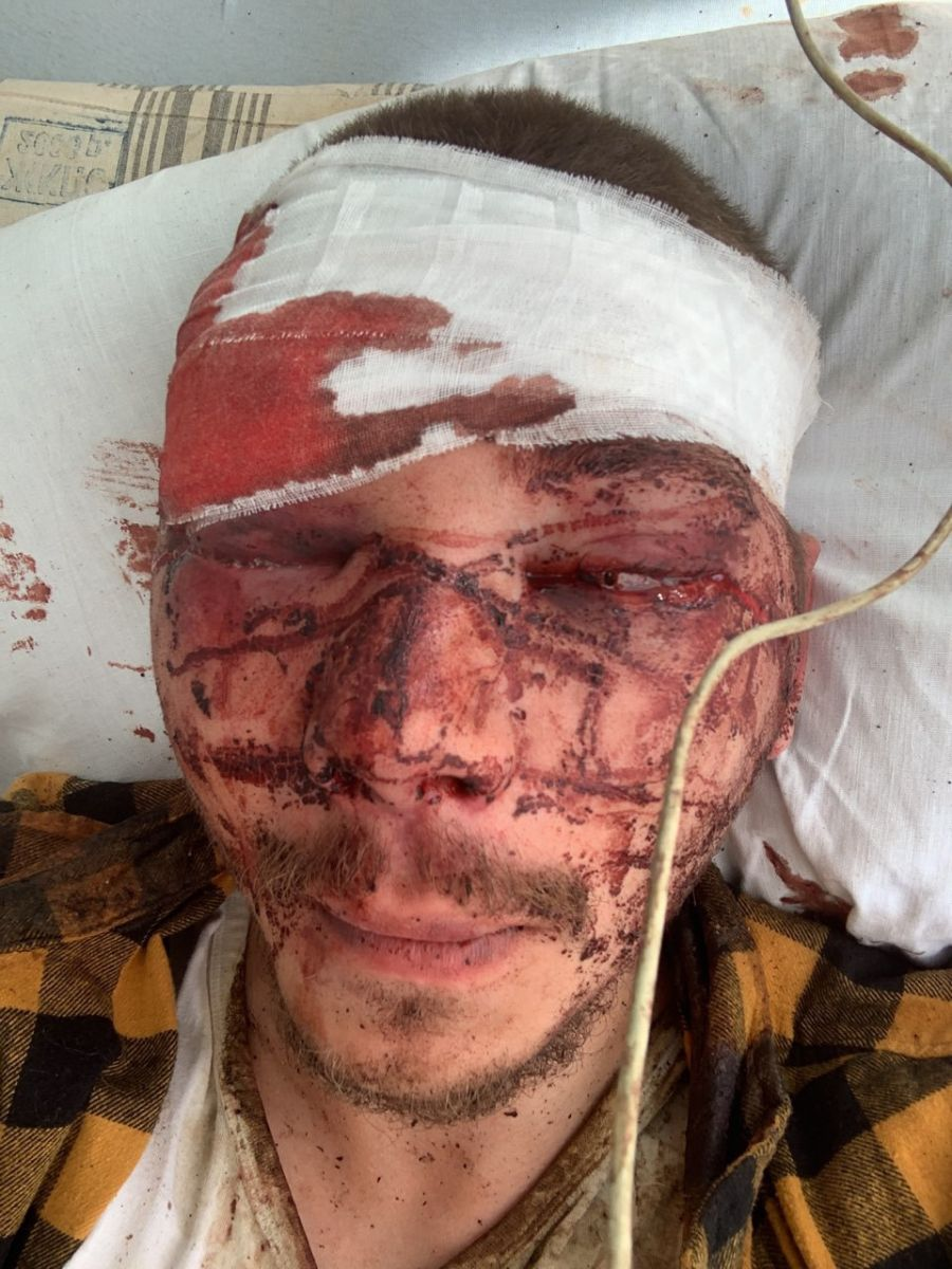 В Харькове жестоко избили члена партии Шария. За два часа до этого он на...