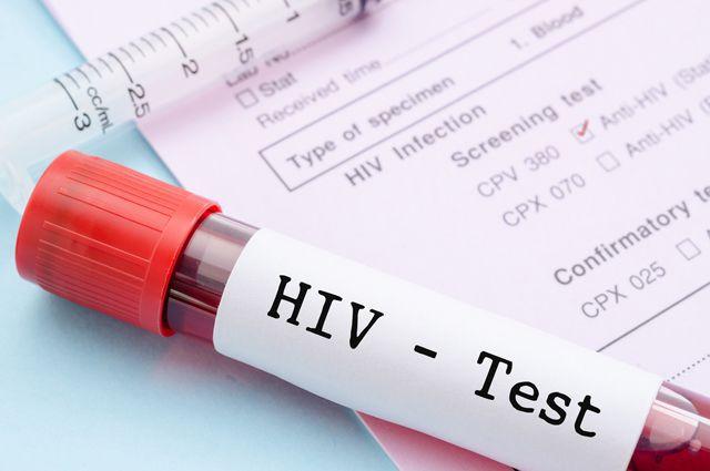 В июле в Украине умерли от СПИДа  263 человека