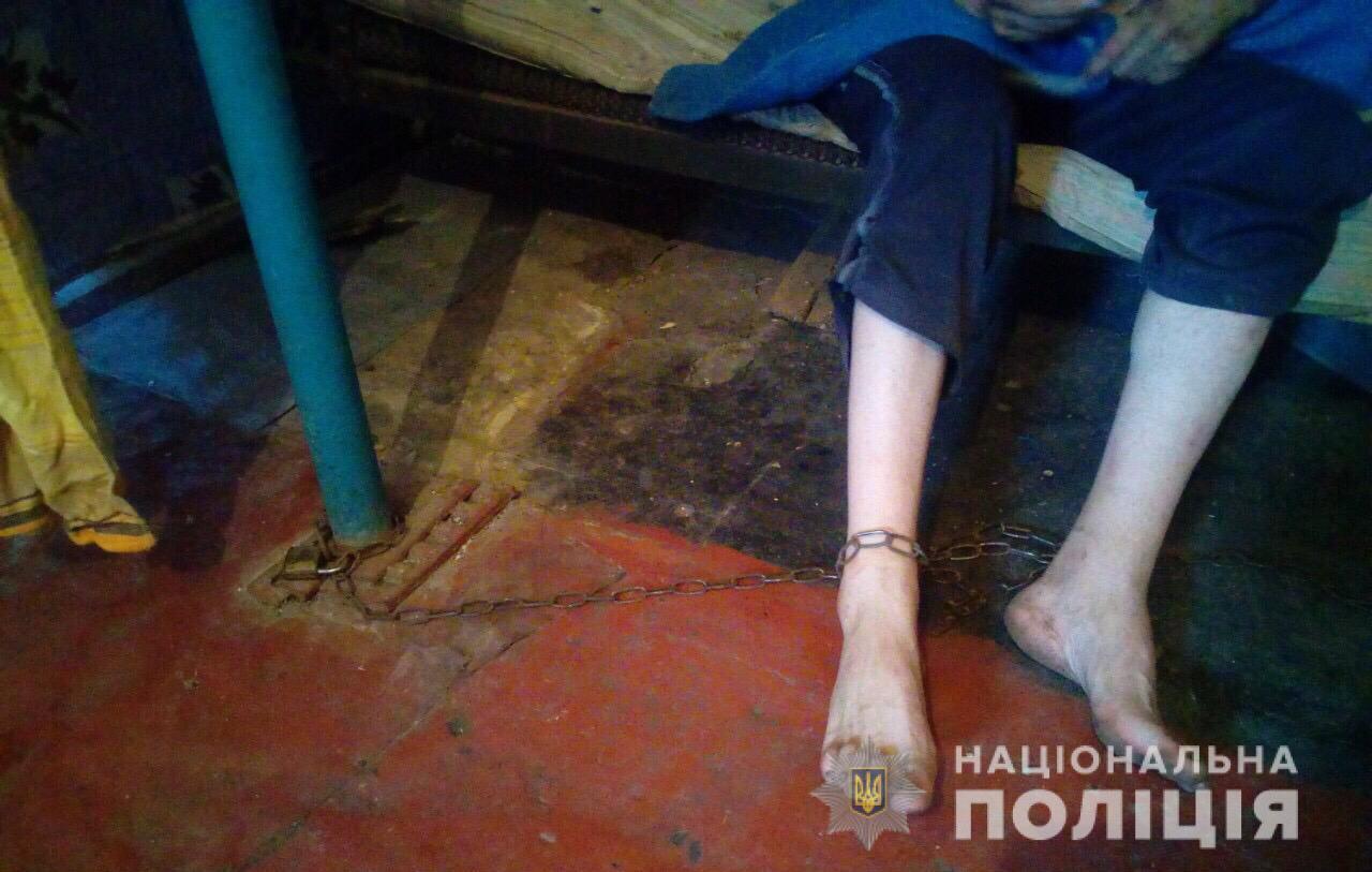 На Днепропетровщине мать держала на цепи 36-летнего сына из-за пенсии