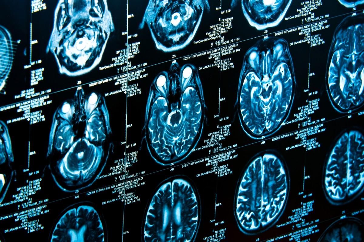 Переключатель сознания. Ученые обнаружили скрытую функцию человеческого...