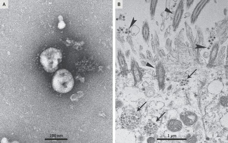 Вирусологи Ухани изучали смертельный для свиней коронавирус, переносимый...