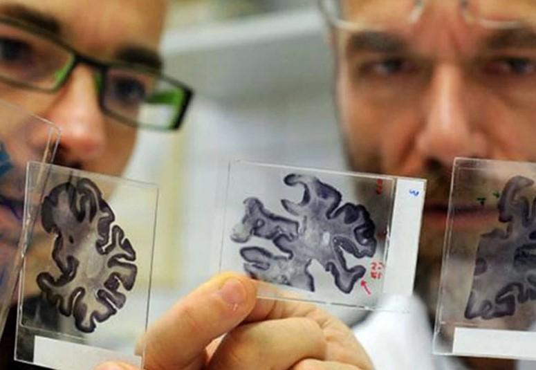 Прием микродоз ЛСД может помочь в борьбе с болезнью Альцгеймера, – учены...