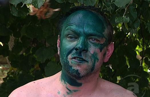 Власенко вновь облили зеленкой