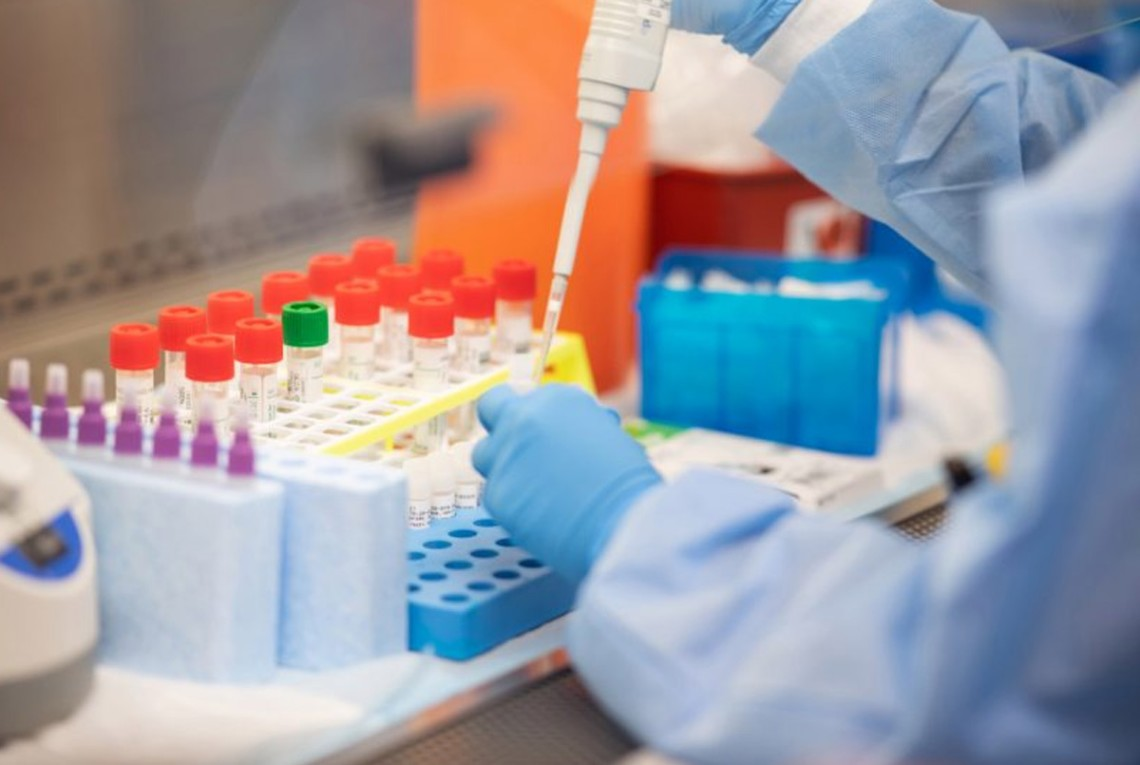 Уже во второй лаборатории во Львове вспышка коронавируса