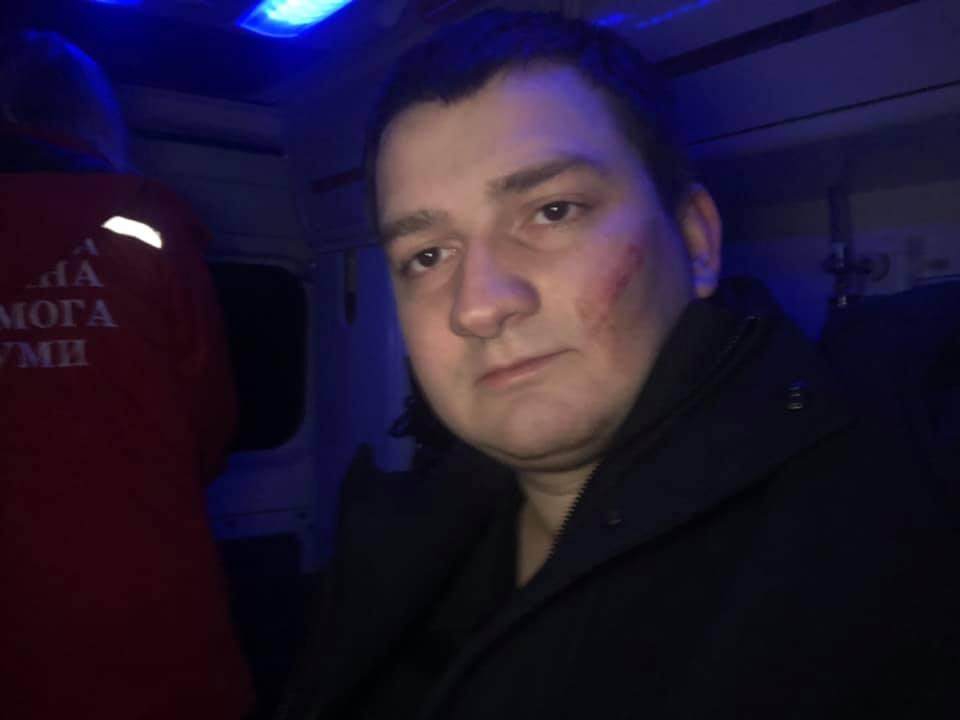 """Прокуратура открыла дело по факту нападения на """"слугу народа"""" Ананченко"""
