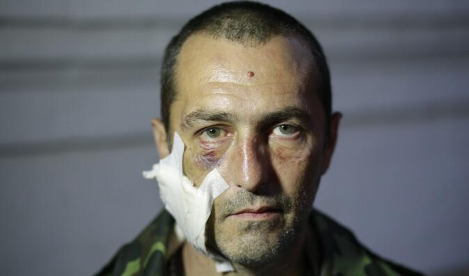 Почему Норайр Карапетян рвется из больницы на фронт