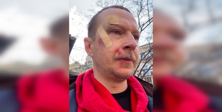 Майкл Щур, Роман Винтонив, избиение, самокаты, судебно-медицинская экспертиза