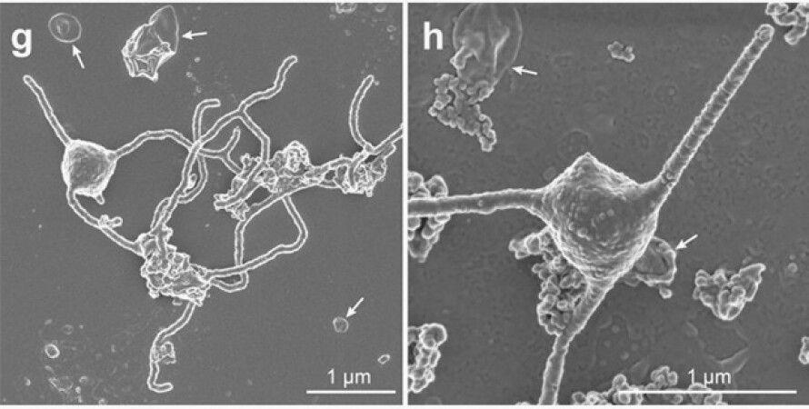 Фото: Prometheoarchaeum syntrophicum. Фото: Imachi et al., bioRxiv