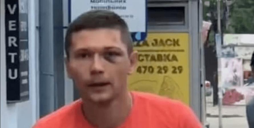 танцор Нади Дорофеевой, избиение танцора в Киеве, сотрудник УГО
