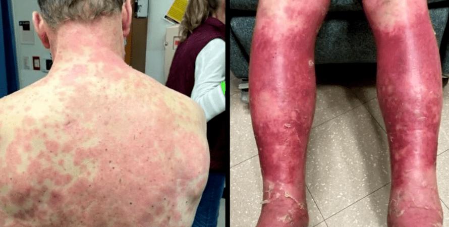 алергія на вакцинацію в сша