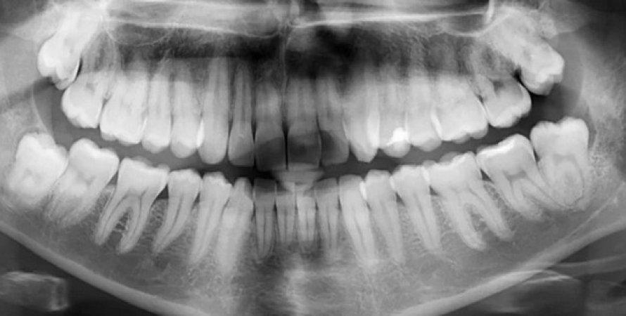 Рентгенівський знімок зуби