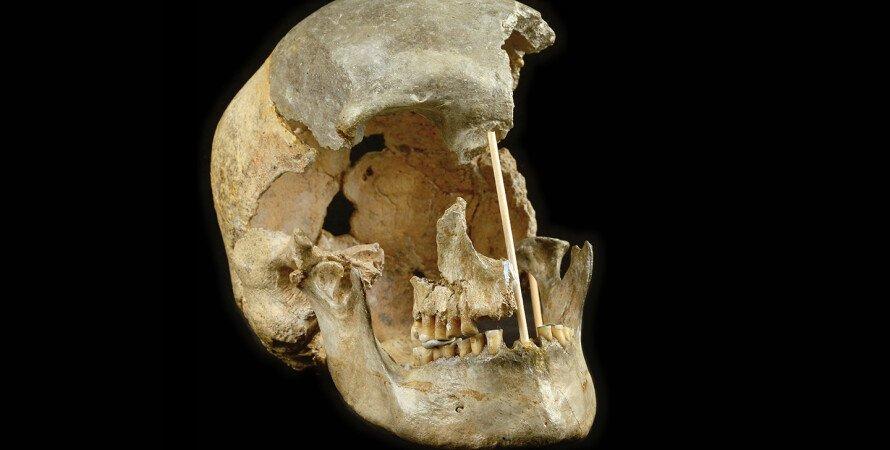 череп, останки, фото, Homo sapiens