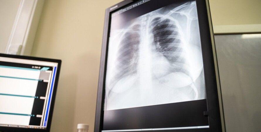 рентген, легкие, коронавирус
