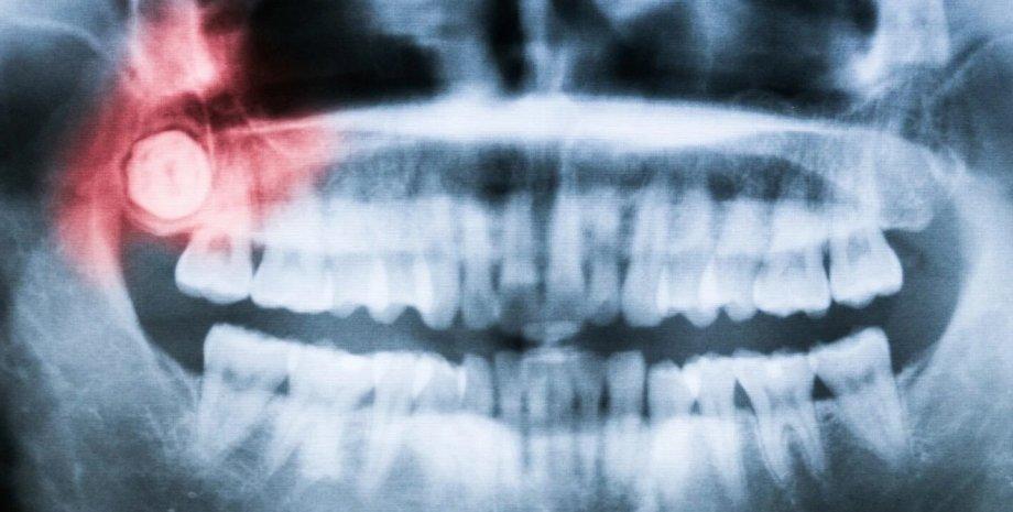 Зуби, щелепу, рентген