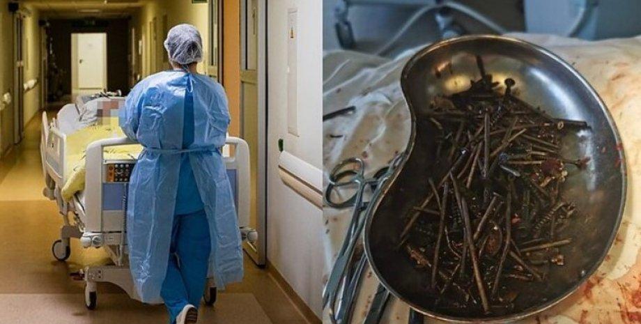 У шлунку жителя Литви виявили кілограм цвяхів і шурупів
