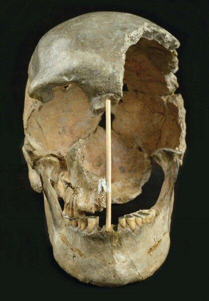 череп, зубы, человек, фото, женщина